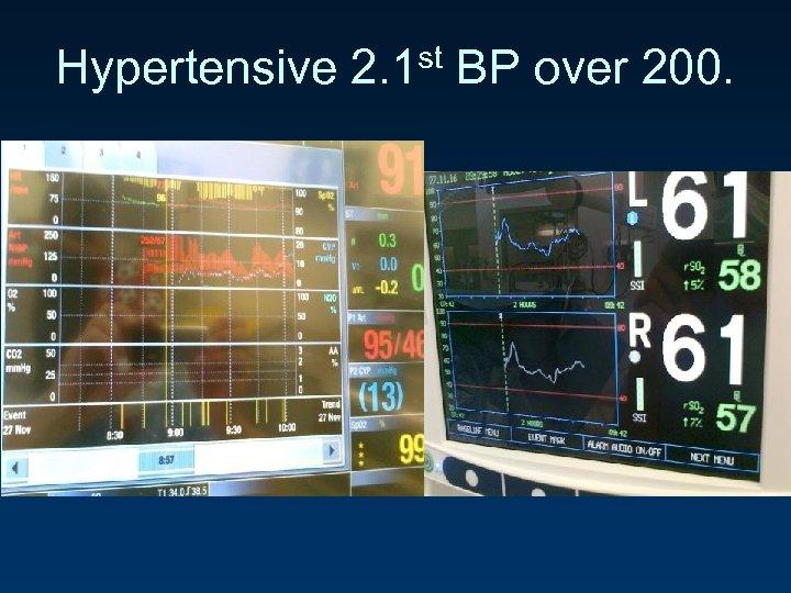 Hypertensive 2. 1 st BP over 200.