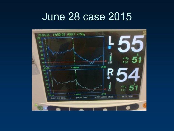 June 28 case 2015