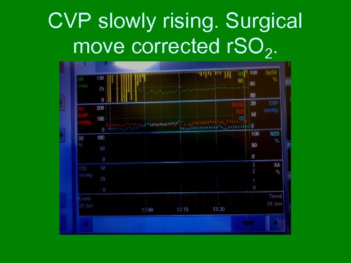 CVP slowly rising. Surgical move corrected r. SO 2.