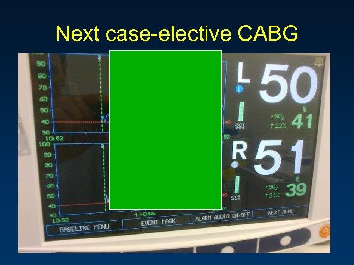 Next case-elective CABG