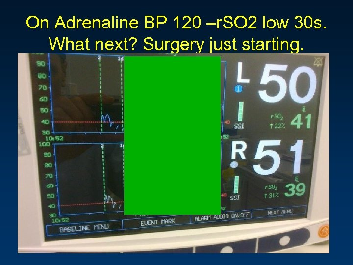 On Adrenaline BP 120 –r. SO 2 low 30 s. What next? Surgery just