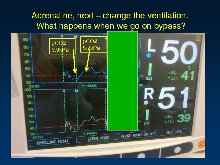 Adrenaline, next – change the ventilation. What happens when we go on bypass? p.