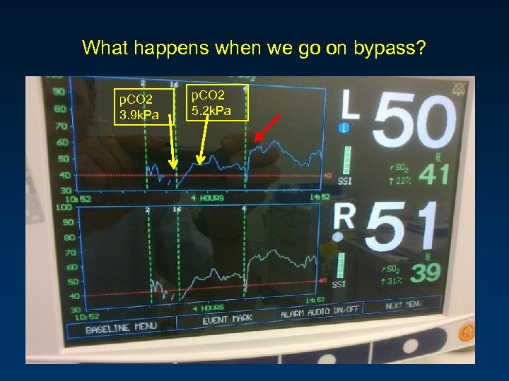 What happens when we go on bypass? p. CO 2 3. 9 k. Pa