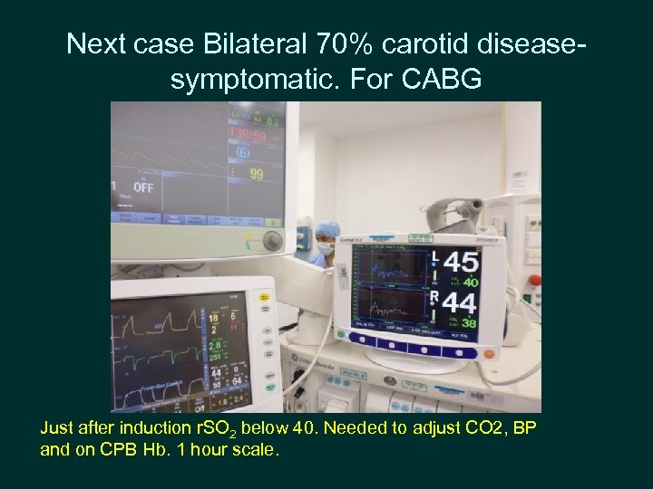 Next case Bilateral 70% carotid diseasesymptomatic. For CABG Just after induction r. SO 2