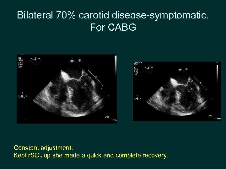 Bilateral 70% carotid disease-symptomatic. For CABG Constant adjustment. Kept r. SO 2 up she