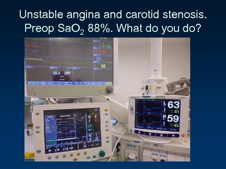 Unstable angina and carotid stenosis. Preop Sa. O 2 88%. What do you do?