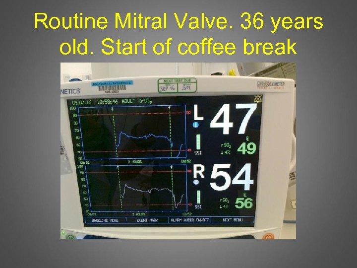 Routine Mitral Valve. 36 years old. Start of coffee break