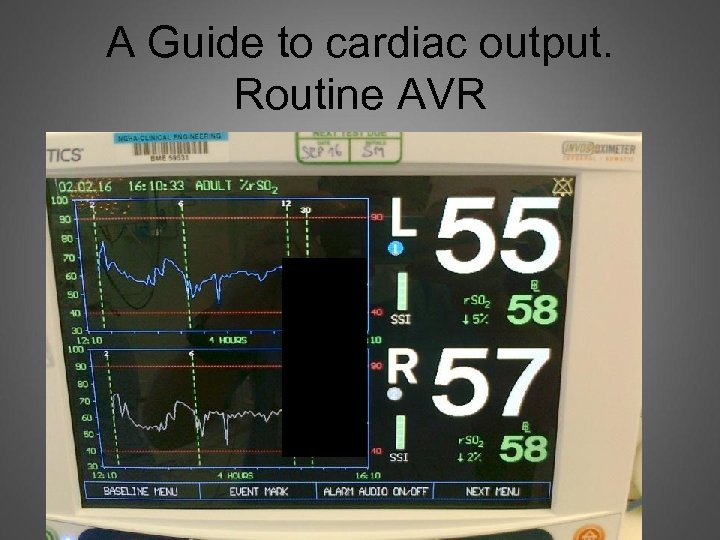 A Guide to cardiac output. Routine AVR