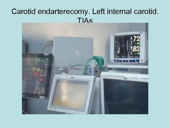 Carotid endarterecomy. Left internal carotid. TIAs