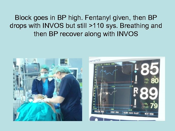Block goes in BP high. Fentanyl given, then BP drops with INVOS but still