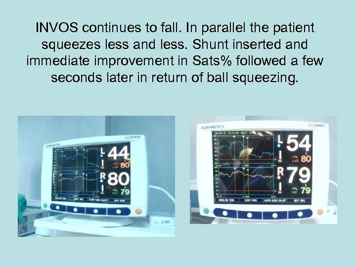 INVOS continues to fall. In parallel the patient squeezes less and less. Shunt inserted
