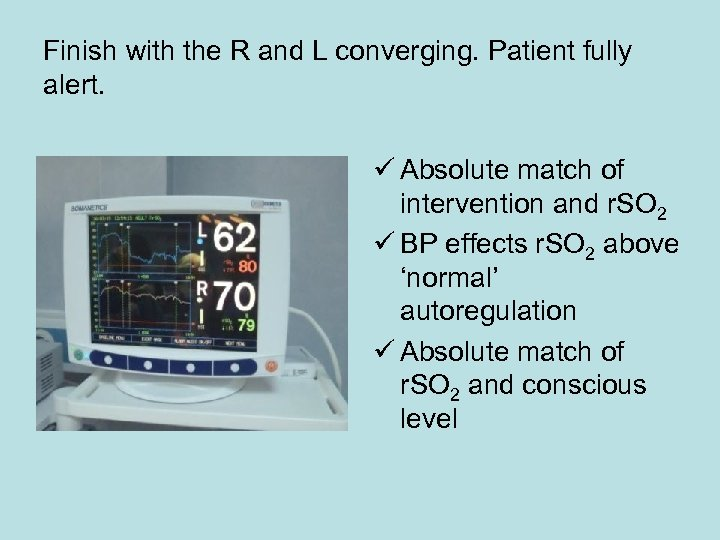 Finish with the R and L converging. Patient fully alert. ü Absolute match of