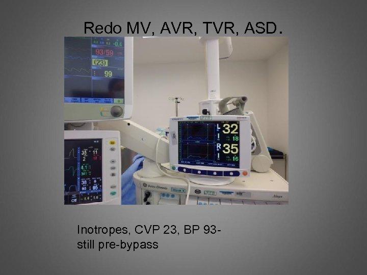 Redo MV, AVR, TVR, ASD. Inotropes, CVP 23, BP 93 still pre-bypass