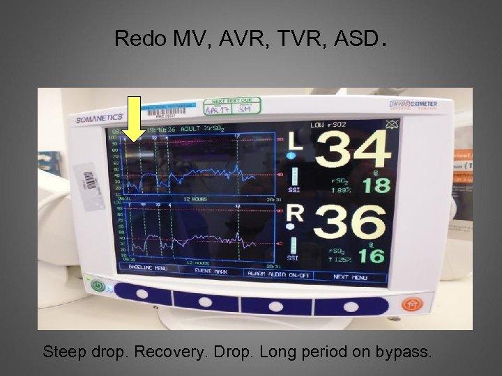 Redo MV, AVR, TVR, ASD. Steep drop. Recovery. Drop. Long period on bypass.