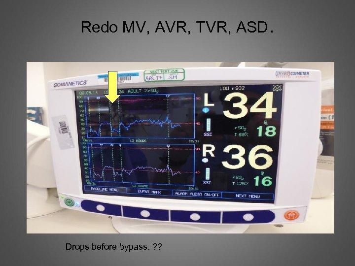 Redo MV, AVR, TVR, ASD. Drops before bypass. ? ?