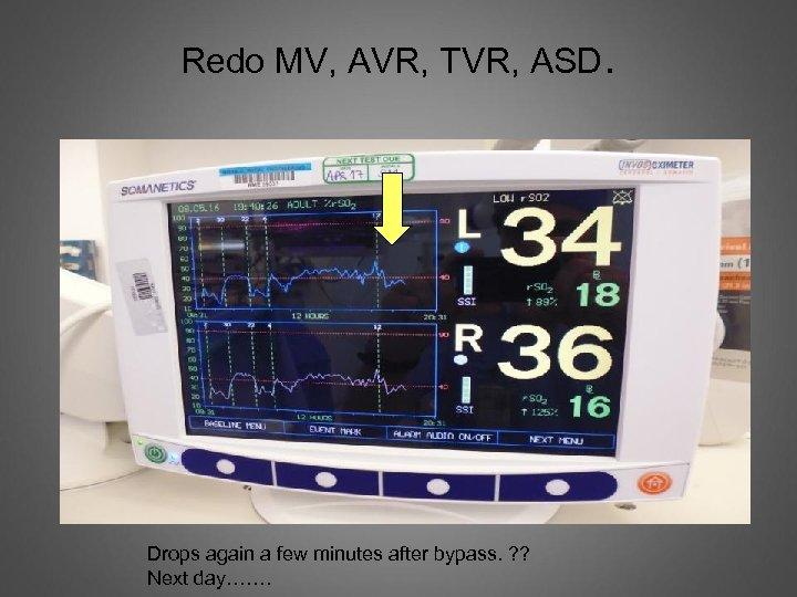 Redo MV, AVR, TVR, ASD. Drops again a few minutes after bypass. ? ?
