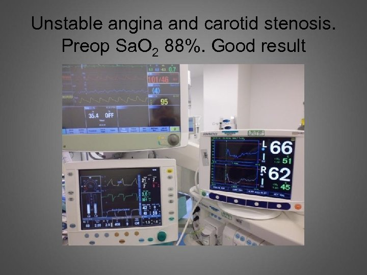 Unstable angina and carotid stenosis. Preop Sa. O 2 88%. Good result