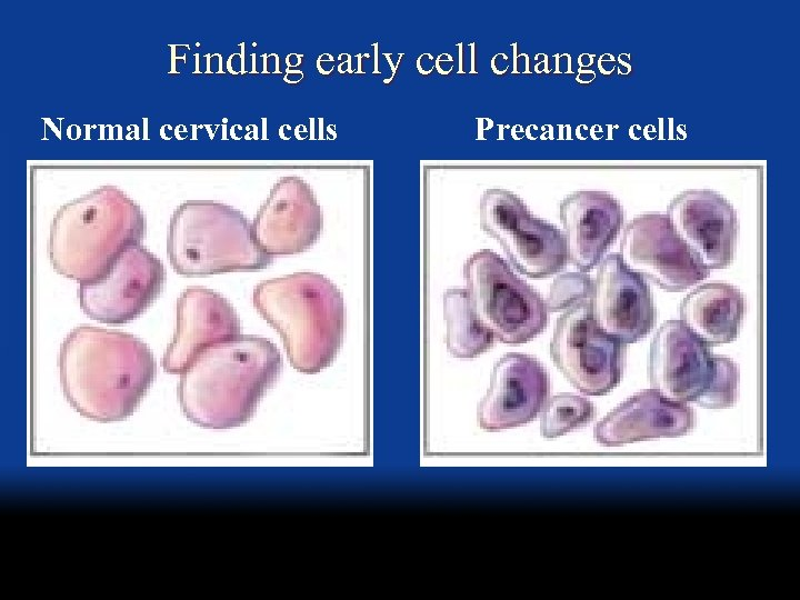 Finding early cell changes Normal cervical cells Precancer cells