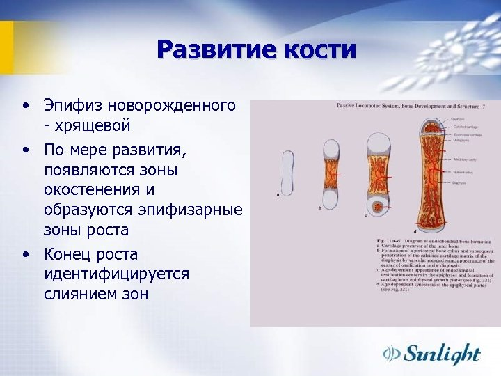 Развитие кости • Эпифиз новорожденного - хрящевой • По мере развития, появляются зоны окостенения