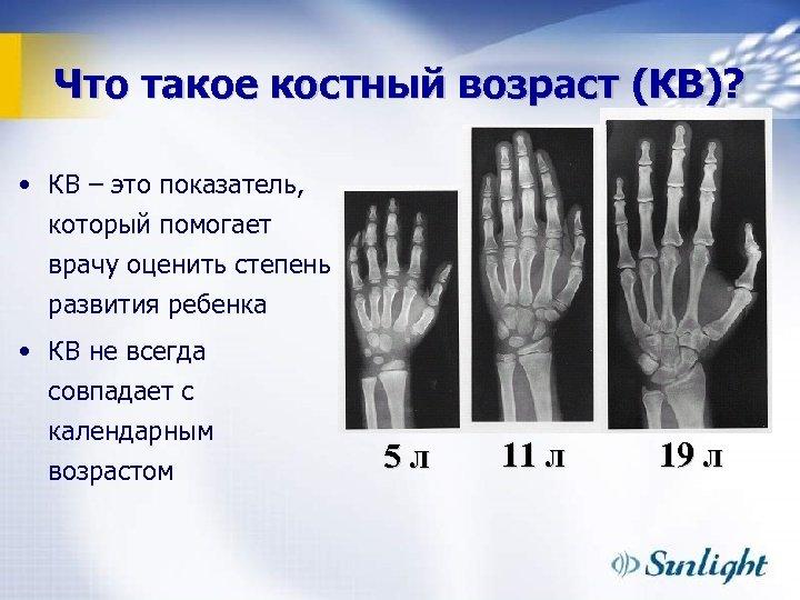 Что такое костный возраст (КВ)? • КВ – это показатель, который помогает врачу оценить