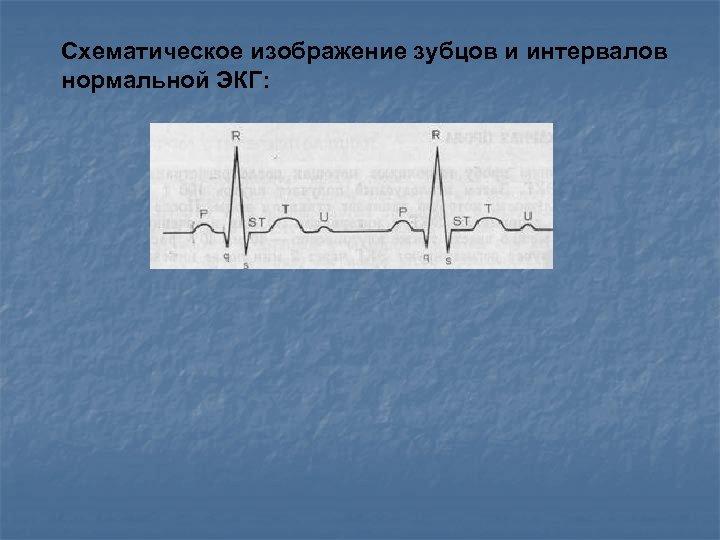 Схематическое изображение зубцов и интервалов нормальной ЭКГ: