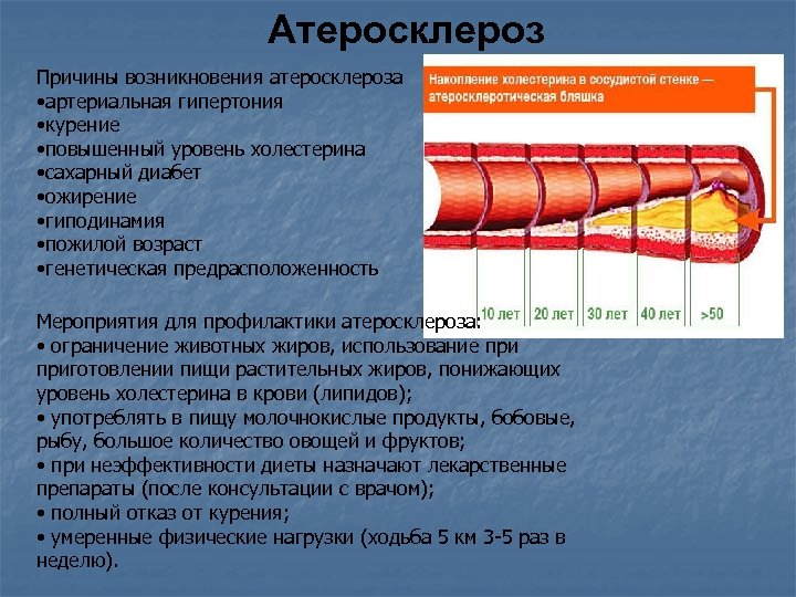 Атеросклероз Причины возникновения атеросклероза • артериальная гипертония • курение • повышенный уровень холестерина •