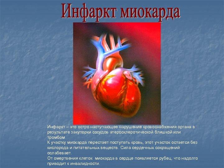 Инфаркт – это остро наступающее нарушение кровоснабжения органа в результате закупорки сосудов атеросклеротической бляшкой
