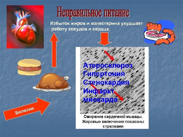 Избыток жиров и холестерина ухудшает работу сосудов и сердца. Атеросклероз Гипертония Стенокардия Инфаркт миокарда