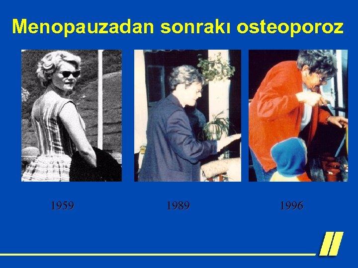 Menopauzadan sonrakı osteoporoz 1959 1989 1996