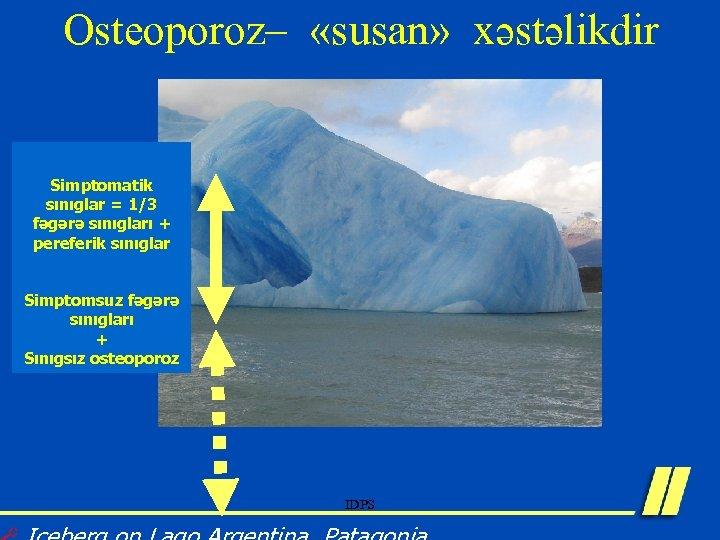 Osteoporoz– «susan» xəstəlikdir Simptomatik sınıglar = 1/3 fəgərə sınıgları + pereferik sınıglar Simptomsuz fəgərə