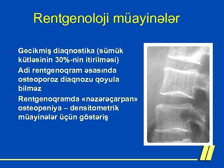Rentgenoloji müayinələr - Gecikmiş diaqnostika (sümük kütləsinin 30%-nin itirilməsi) - Adi rentgenoqram əsasında osteoporoz