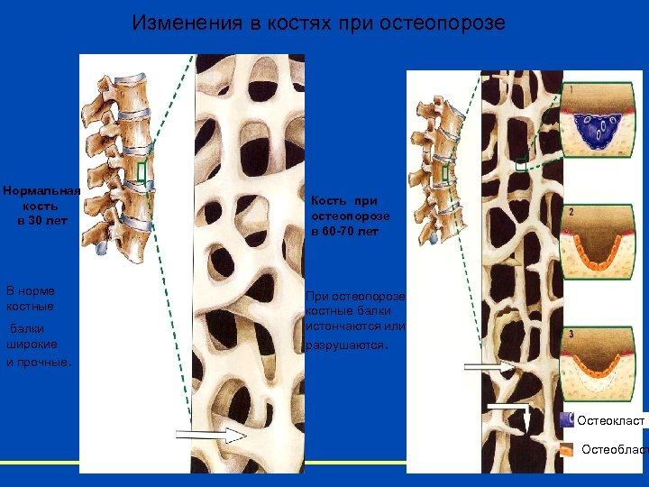 Изменения в костях при остеопорозе Нормальная кость в 30 лет В норме костные балки