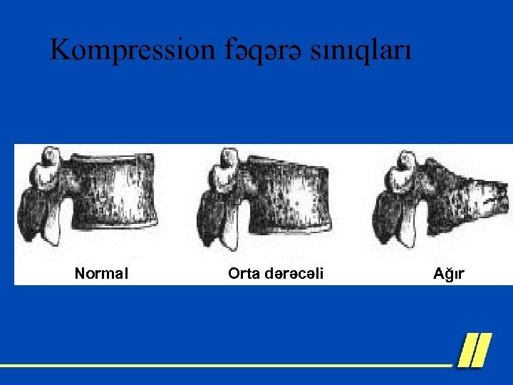 Kompression fəqərə sınıqları Normal Orta dərəcəli Ağır