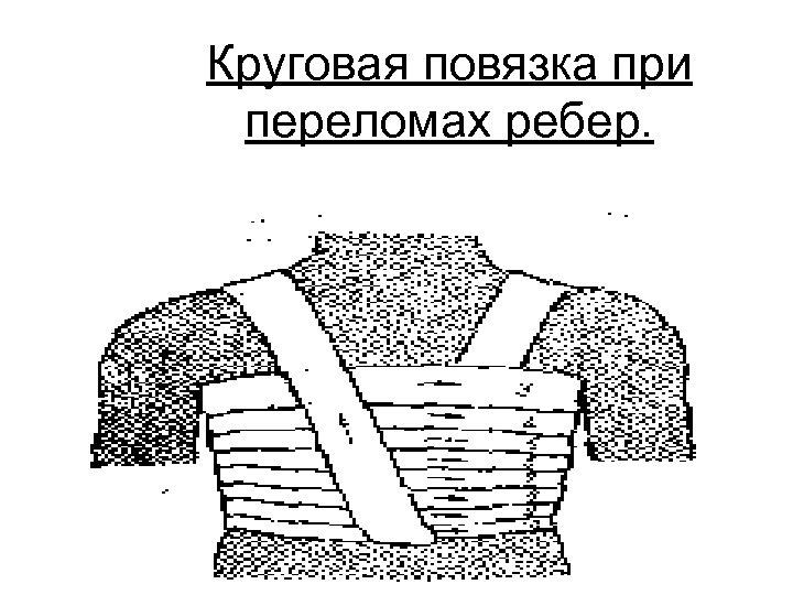 Круговая повязка при переломах ребер.