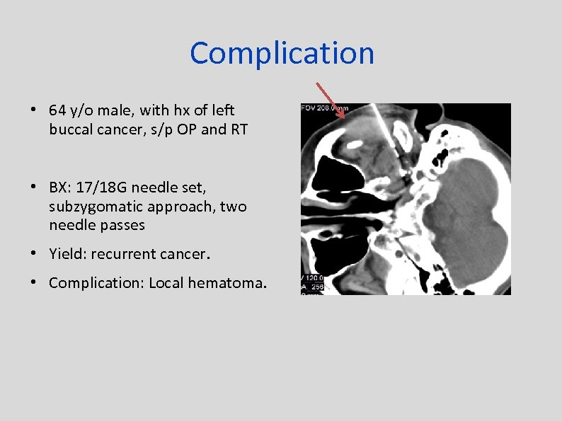 Complication • 64 y/o male, with hx of left buccal cancer, s/p OP and