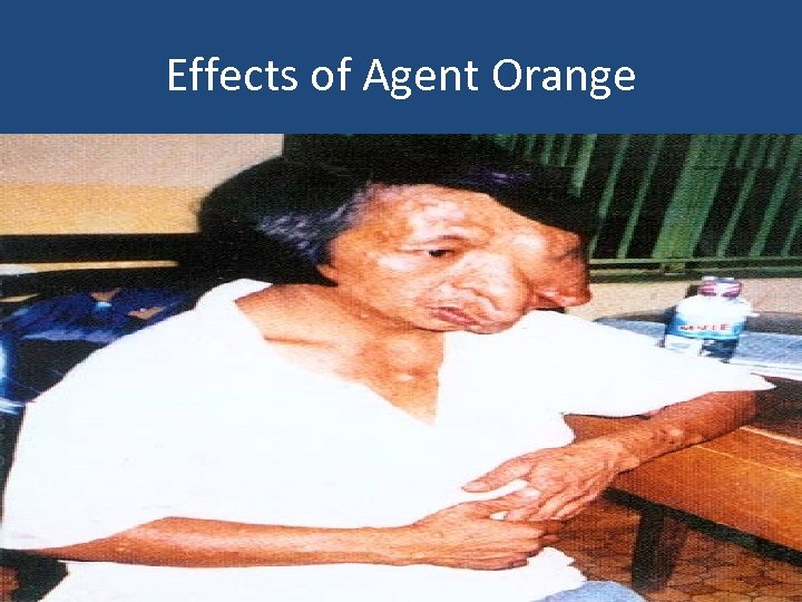 Effects of Agent Orange