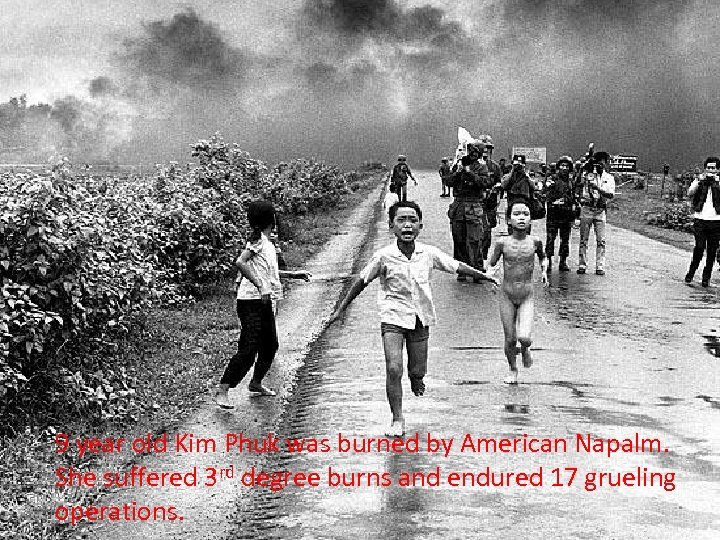 9 year old Kim Phuk was burned by American Napalm. She suffered 3 rd