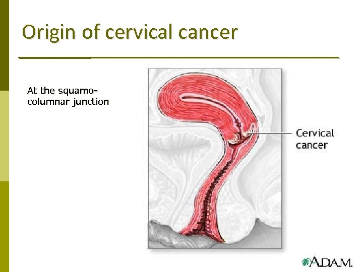 Origin of cervical cancer At the squamocolumnar junction