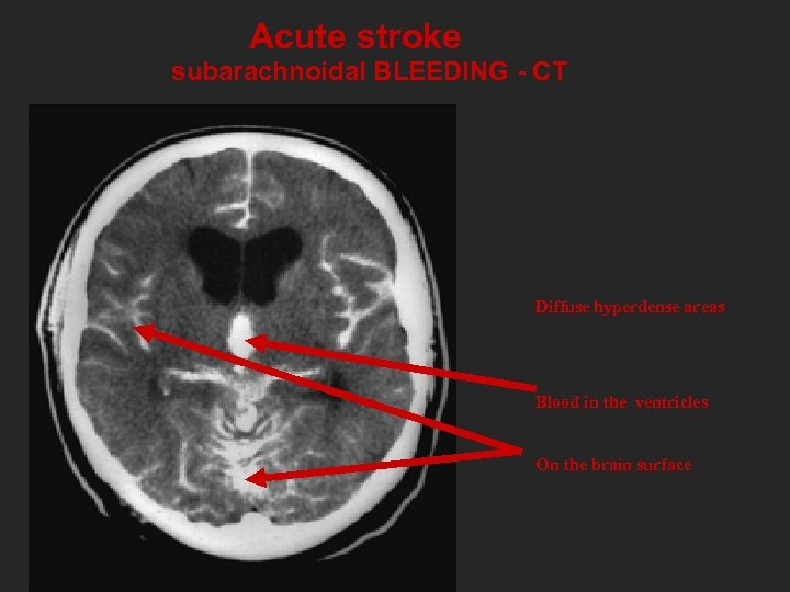 Acute stroke subarachnoidal BLEEDING - CT Diffuse hyperdense areas Blood in the ventricles On