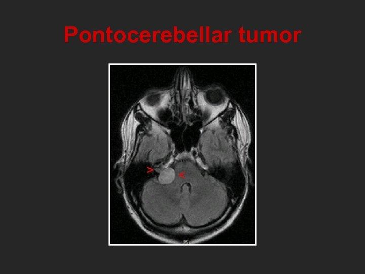 Pontocerebellar tumor
