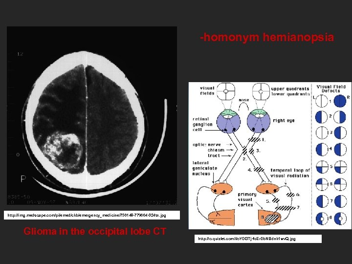 -homonym hemianopsia http: //img. medscape. com/pi/emed/ckb/emergency_medicine/756148 -779664 -324 tn. jpg Glioma in the occipital