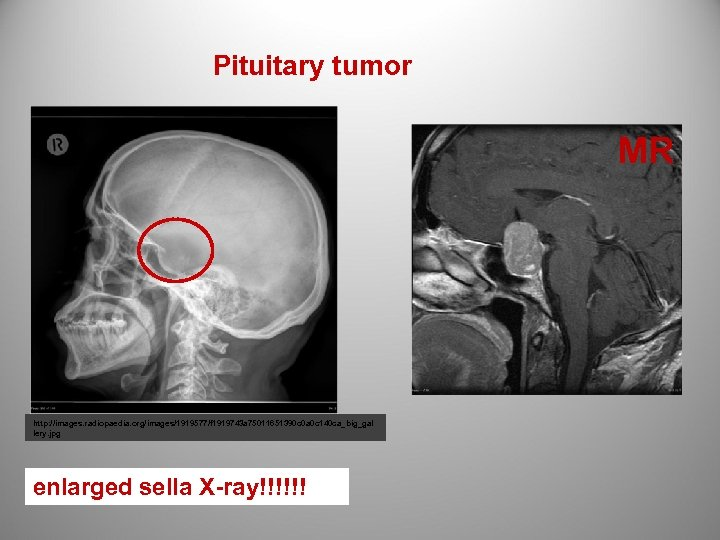 Pituitary tumor MR http: //images. radiopaedia. org/images/1919577/f 1919743 a 75011651390 c 0 a 0