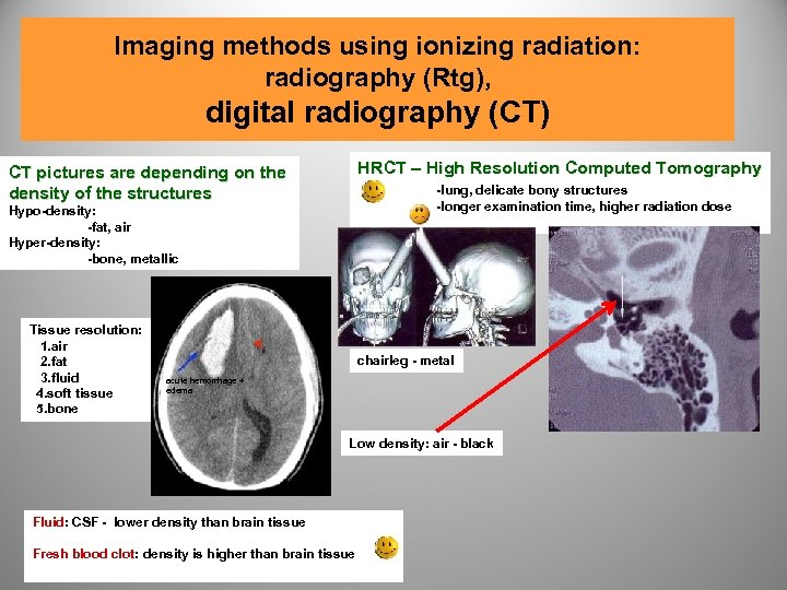 Imaging methods using ionizing radiation: radiography (Rtg), digital radiography (CT) CT pictures are depending