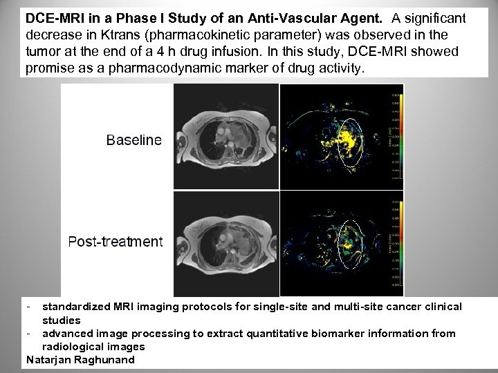 DCE-MRI in a Phase I Study of an Anti-Vascular Agent. A significant decrease in