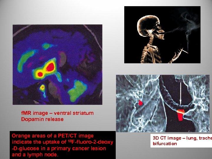 f. MR image – ventral striatum Dopamin release Orange areas of a PET/CT image