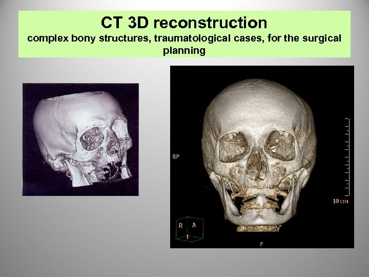CT 3 D reconstruction complex bony structures, traumatological cases, for the surgical planning