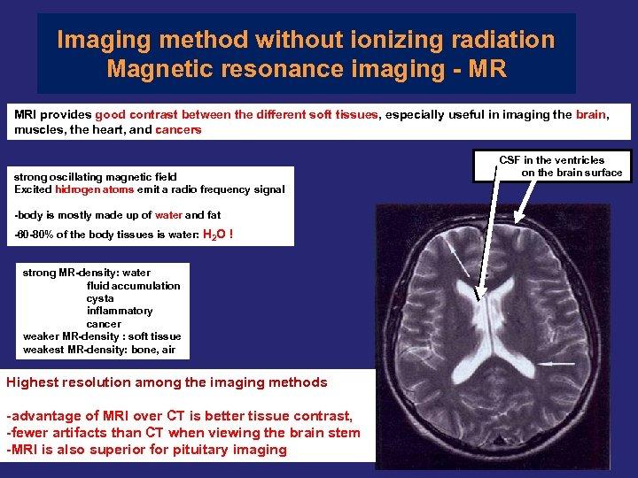 Imaging method without ionizing radiation Magnetic resonance imaging - MR MRI provides good contrast