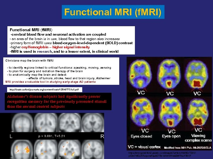 Functional MRI (f. MRI) -cerebral blood flow and neuronal activation are coupled - an