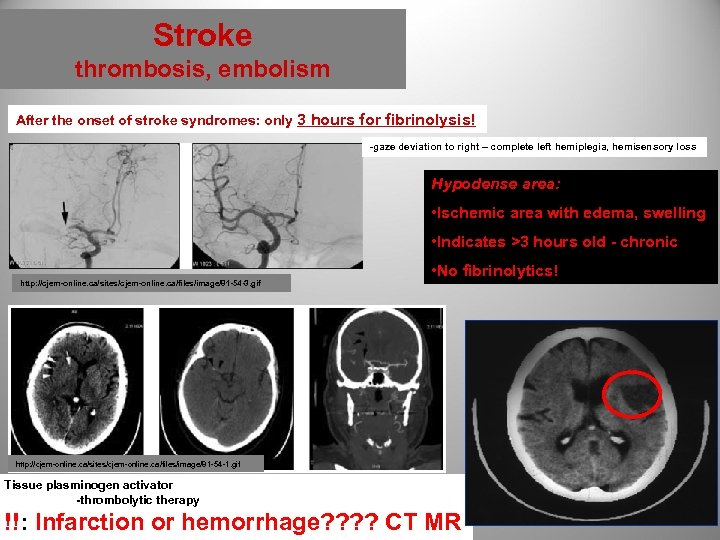 Stroke thrombosis, embolism After the onset of stroke syndromes: only 3 hours for fibrinolysis!