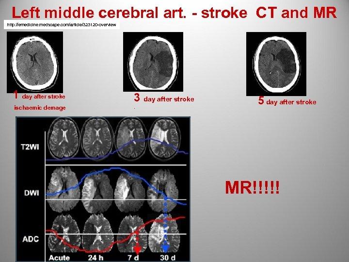Left middle cerebral art. - stroke CT and MR http: //emedicine. medscape. com/article/323120 -overview